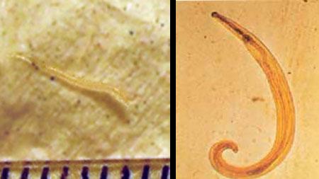 Enterobiasis nedir, Enterobius vermicularis nedir - cheiserv.ro
